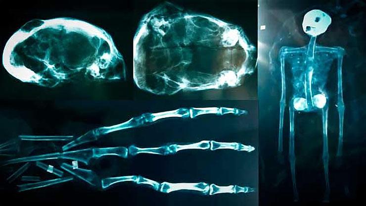 idegen-csontvaz-rontgen-1-bf40e8cf47.jpg