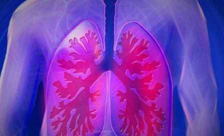 A mesterséges intelligencia kiválónak bizonyult a tüdőrák azonosításában